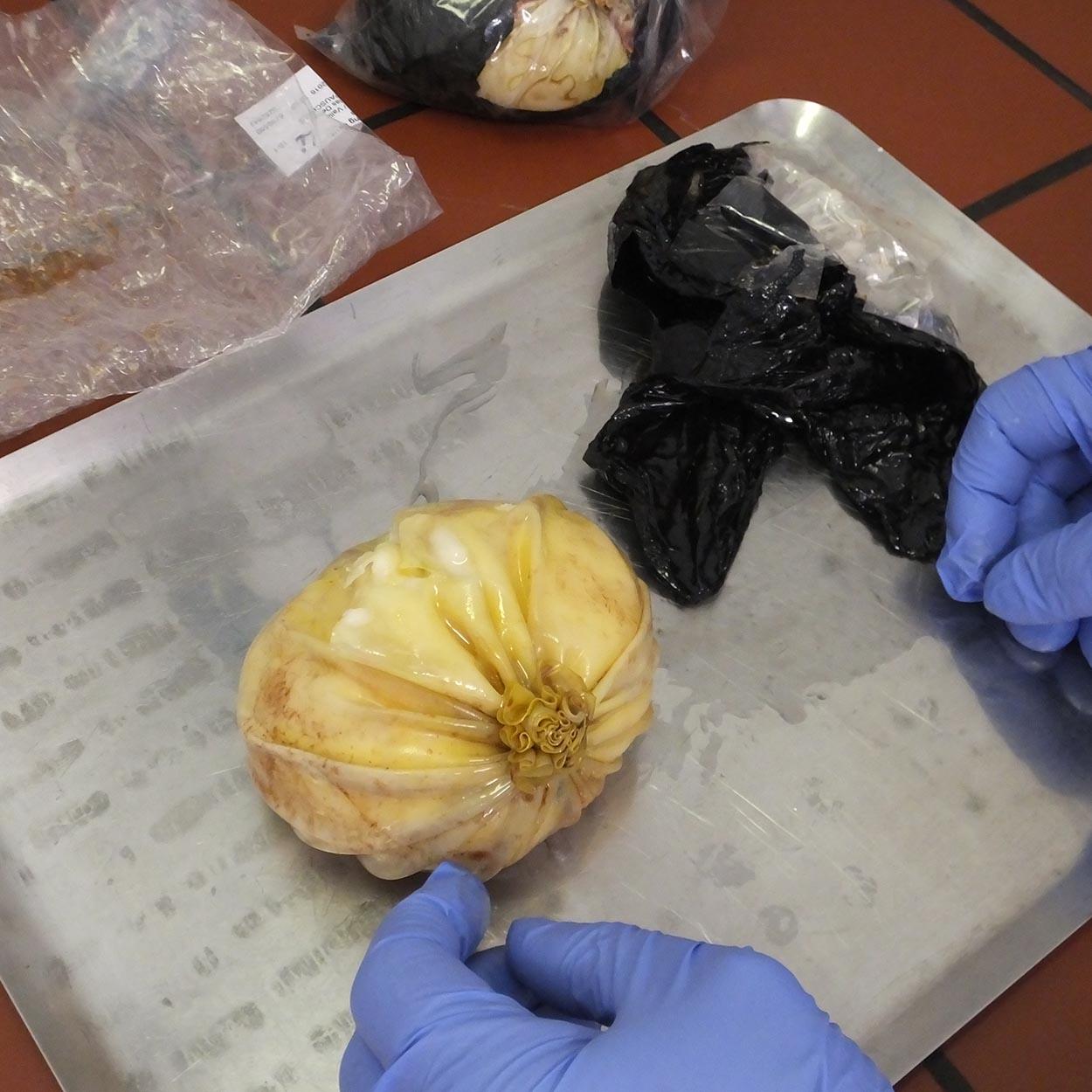 Die Brustimplantate mit Kokain-Teigmasse | Foto: ZFA Frankfurt